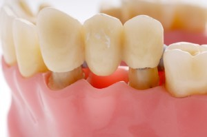 a patient education model of a dental bridge which is used to replace missing teeth